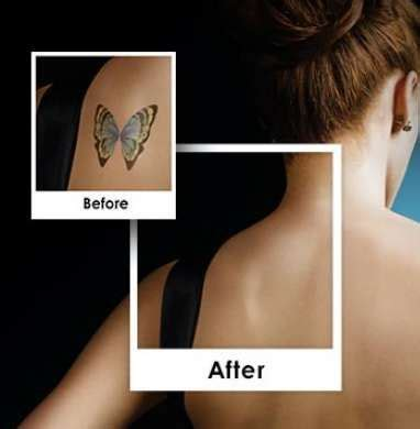 revlite tattoo removal 11 best picosure images on laser