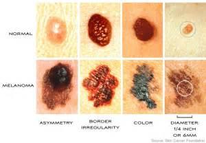 melanoma color skin expert melanoma screening is the best prevention