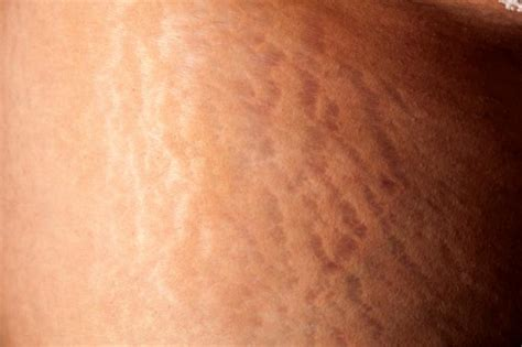 light therapy stretch marks stretch removal treatments and home remedies