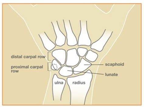 Scaphoid Non-Union Fracture - The Hand Society Fractured Wrist Treatment