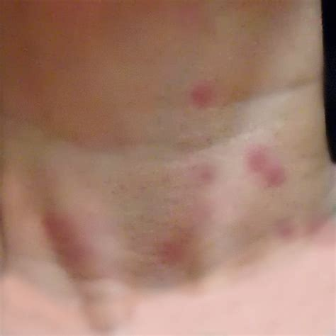 bed bug bites on neck help i have bed bugs thrasher termite pest control