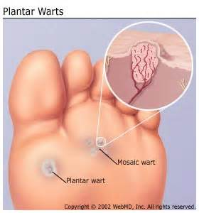 warts homeopathic treatment