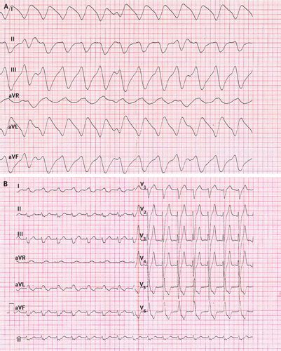 wave pattern of organization an electrocardiographic sine wave in hyperkalemia nejm
