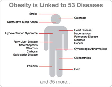 obesity related disease. causes, symptoms, treatment