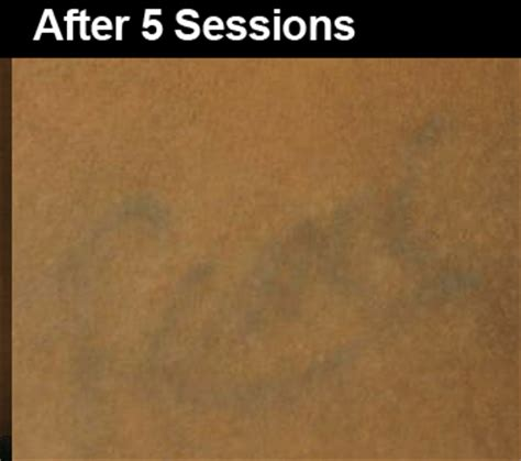 tattoo removal dark skin before after laser removal before and after pictures wifh