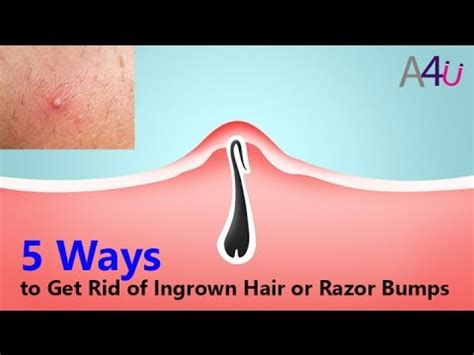 how can you get rid of ingrown hair on private place 5 ways to get rid of ingrown hair or razor bumps by all