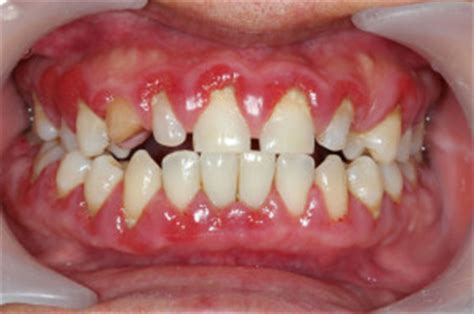 swollen gums: its cause and treatment