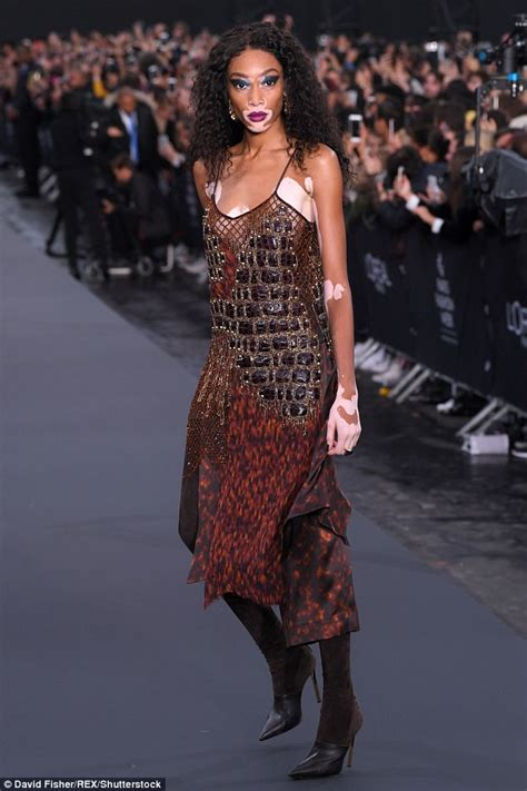 Frock Horror Of The Week Catwalk 17 by Winnie Harlow Steals Show In The L Oreal Show In Pfw