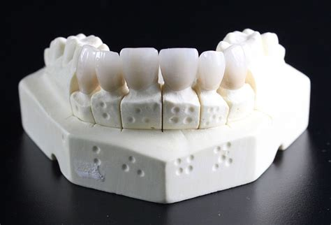 vaughan dentist upper thornhill dental care