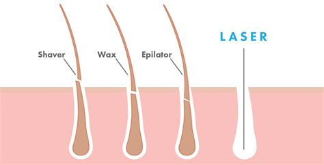 laser hair removal galway elysium day spa laser clinic ultrasound hair removal does it work om hair