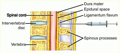 epidural and c section epidural c section full size picture block epidural jpg