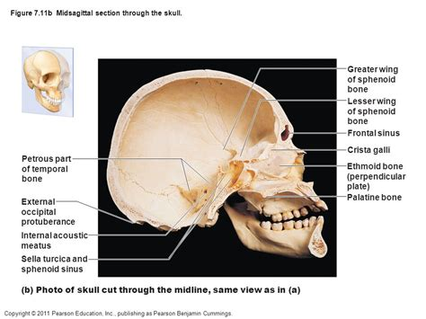 midsagittal section figure 7 1a the human skeleton ppt video online download