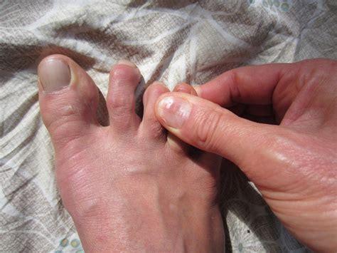 how to fix hammer toes at home home inger kinkelaar
