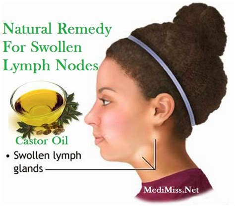 castor remedy for swollen lymph nodes medimiss