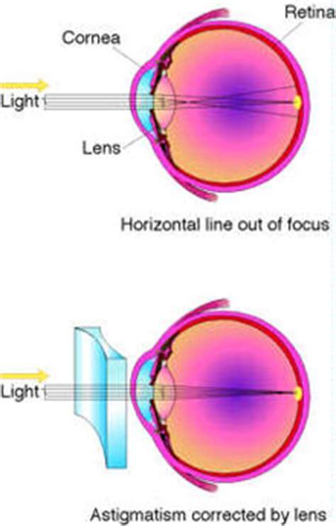 toric premium lens implant astigmatism ayr scotland toric