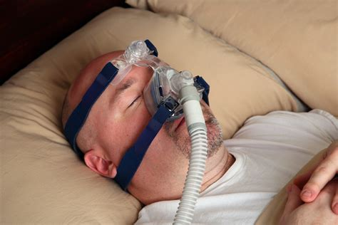 Sleep Apnea by Pulmonary Medicine