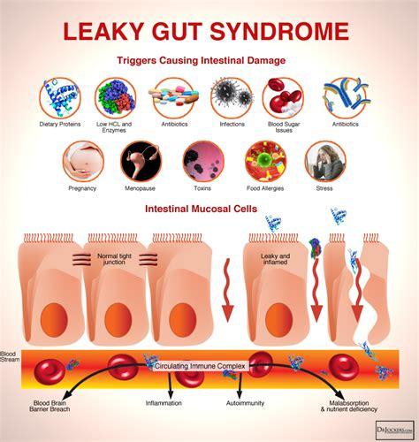 Leaky Gut Detox Diet by The Leaky Gut Protocol Drjockers