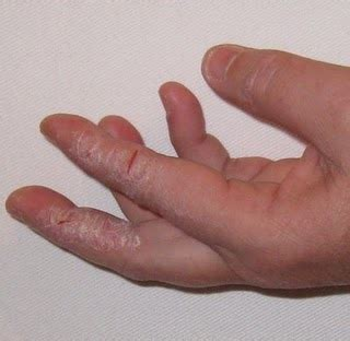 yeast infection fingers pictures guide