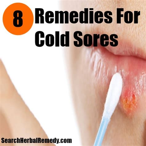 cold sores on lip home remedy viral fever home cure