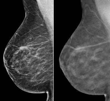 mammography: online mammography cme