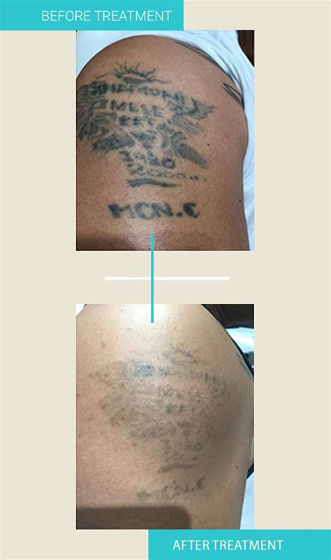 tattoo removal institute 1 laser tattoo removal sydney tattoo removal institute
