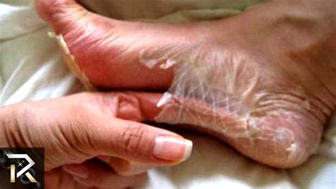 Shedding Skin by Who Shed 40 Lbs Of Skin 30 Facts You Wont Believe