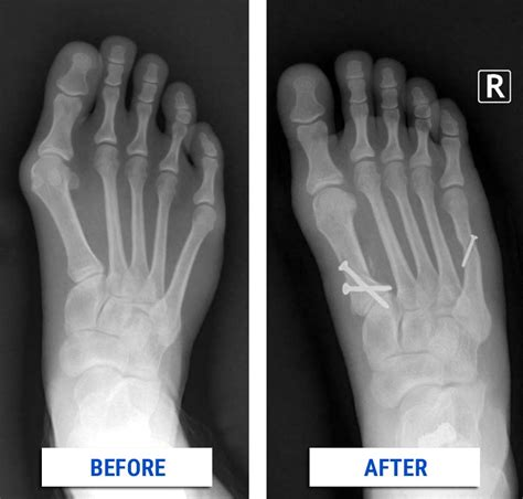 Detoxing After X Rays by Bunion Correction Alpine Foot Specialists