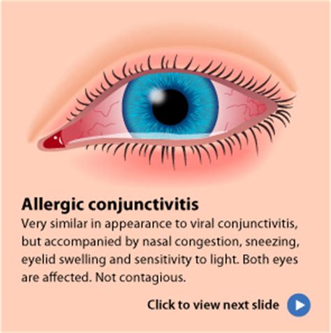 eyes sensitive to light and watery pink eye viral infections blog articles