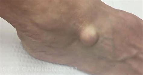 is a little bump on the top of hair instyle in 2015 doctor slices open mystery lump on man s foot and is