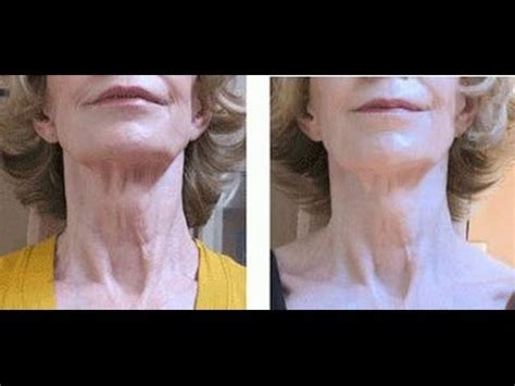 does losing weight reduce neck skin sag face exercises solutions to get rid of turkey neck and
