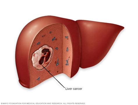 liver cancer symptoms and causes nonalcoholic fatty liver disease mayo clinic