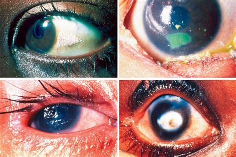 Symptoms Of Blindness community eye health journal 187 prevention of childhood blindness teaching set text
