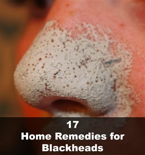 17 home remedies for blackheads selfcarer