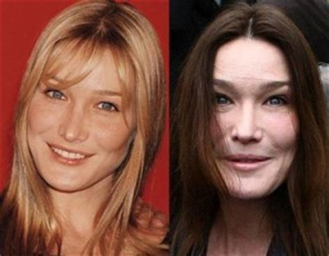dominique sachse plastic surgery before and after photos celebrity mind blowing world part 14