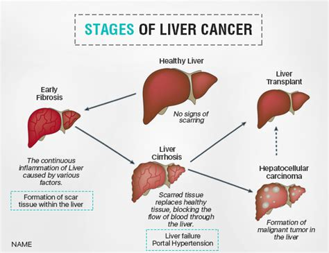 liver failure stages liver cancer