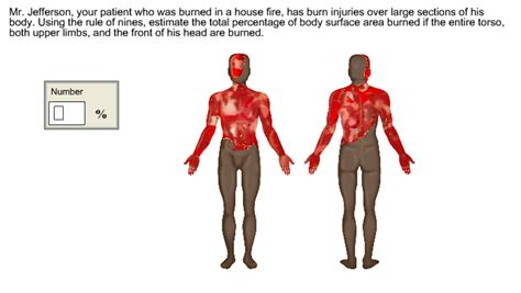 solved mr jefferson your patient who was burned in a ho