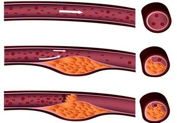colesterolo alto e alimentazione rimedi per abbassare il colesterolo alto