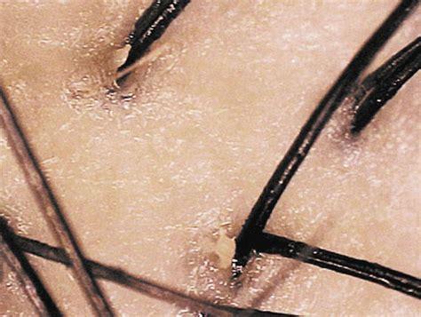 oily hair  oily scalp hair loss