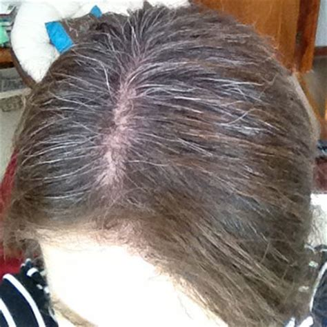 how can i use highlights to hide gray hairline with black hair best color for hiding gray hairs hairsstyles co