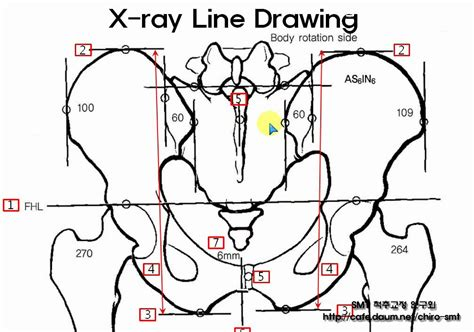 Drawing X On by Pelvic X Line Drawing