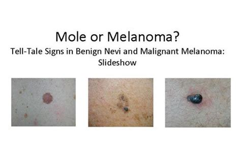 differences between malignant melanoma and a normal mole mole or melanoma tell tale signs in benign nevi and