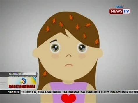 bt: kuto, isa sa mga problema ng ilang bata tuwing tag
