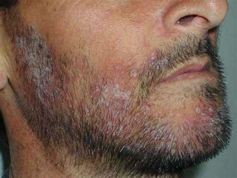 dermatite in testa dermatite seborroica foto foto salute pourfemme
