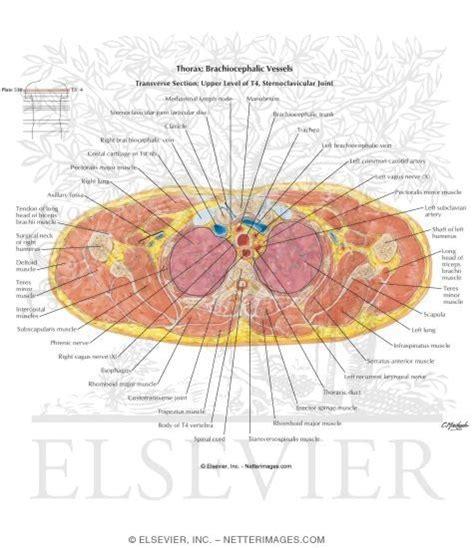 thorax cross section thorax brachiocephalic vessels