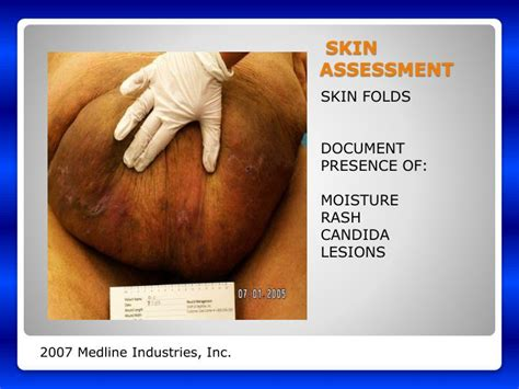 Skin Assessment Documentation
