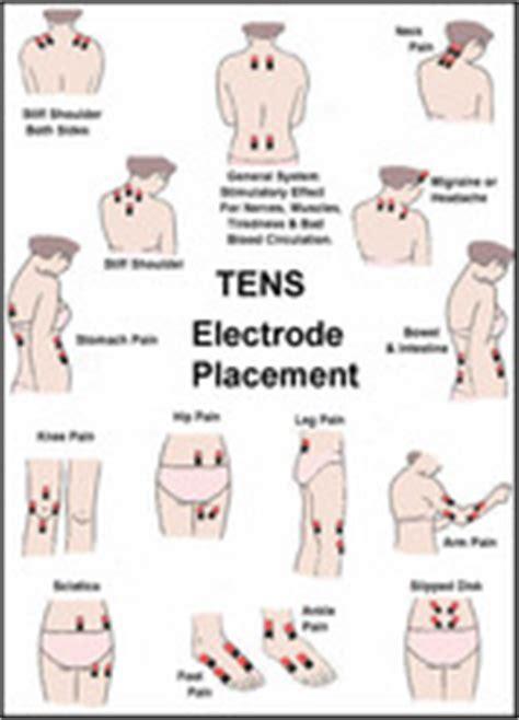 tens unit electrode placement guide