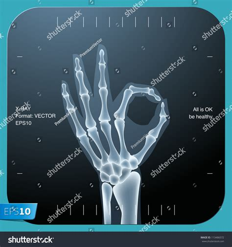 x ray pattern vector xray both human hand ok vector stock vector 113486572