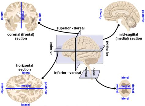 kinds of sectioning brain morphology