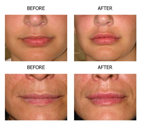 lip augmentation lip augmentation surgery delhi dr
