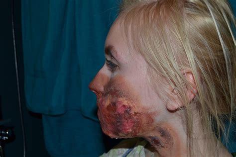 on acid battery acid burns on skin www imgkid the image kid has it